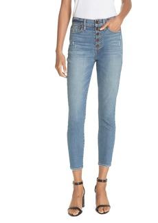 Alice + Olivia AO.LA Good Exposed Fly Skinny Jeans (Long Shot)