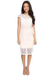 Jessica Simpson Scalloped Lace Dress