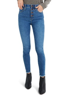 Madewell 10-Inch High-Rise Skinny Jeans: Button-Front Edition (Mackey)