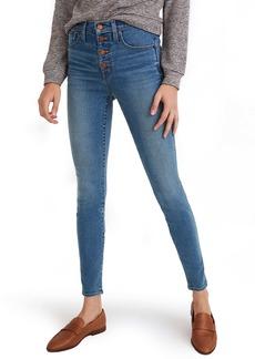 Madewell Button Front High Waist Skinny Jeans (Dewitt Wash)