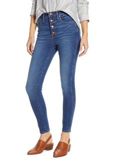 Madewell High Rise Button Front Skinny Jeans (Daventry)