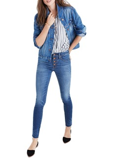 Madewell High Waist Skinny Jeans: Button-Through Edition (Rizzo Wash)
