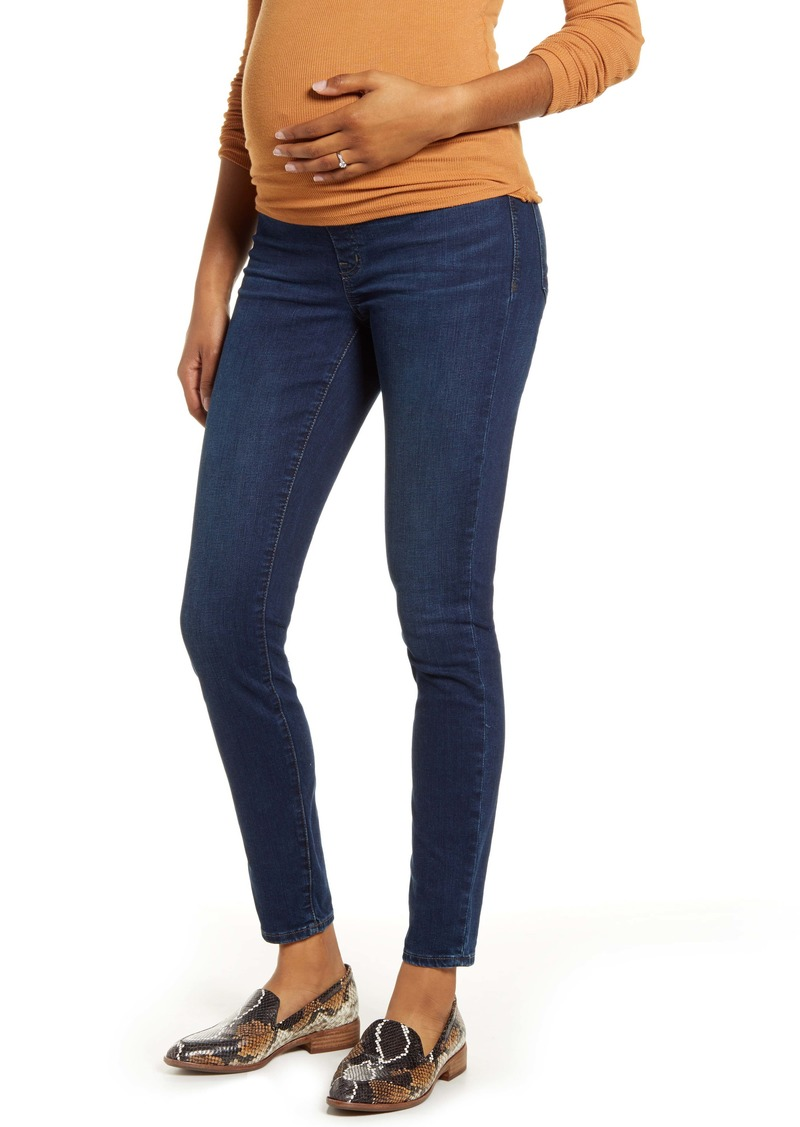 Madewell Maternity Over the Belly Skinny Jeans (Hayes)