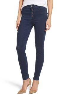 Parker Smith Bombshell High Waist Skinny Jeans (Sky Line)