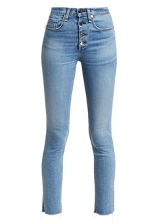 Rag & Bone Rosie Exposed Button Ankle Skinny Jeans