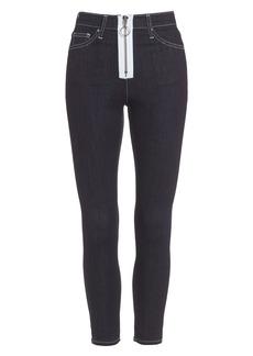 Topshop Jamie Zip Skinny Jeans