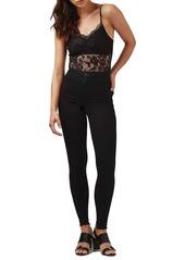 Topshop Lace Scallop Bodysuit