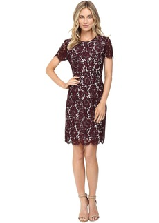 Short Sleeve Scallop Lace Dress