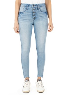 Whetherly Cooper High Waist Raw Hem Button Fly Skinny Jeans (Light Lisbon Wash)