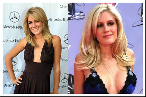 Heidi Montag's Face: Do You Remember the Old Times?